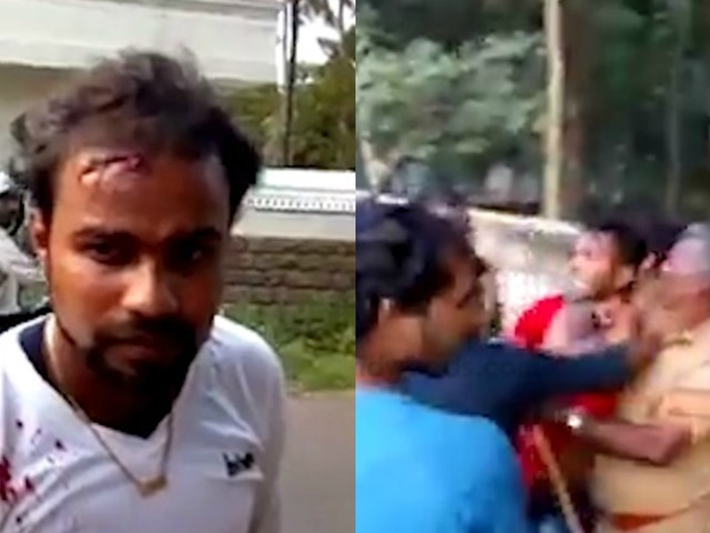 VIDEO: Cop Swings Lathi At Motorcyclist Riding Without A Helmet; Severely Injures The Pillion