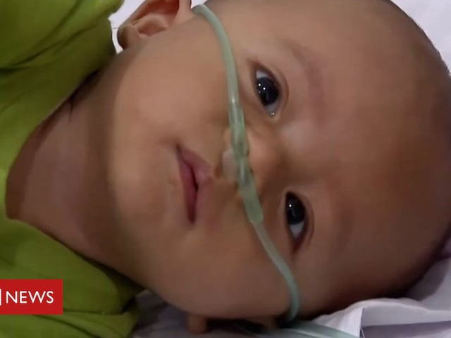 Indonesia haze: 'I'm worried about my baby's health'