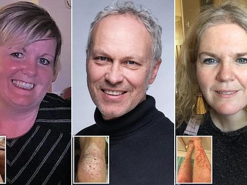 Three psoriasis sufferers share their incredible transformations after using a three-step regime