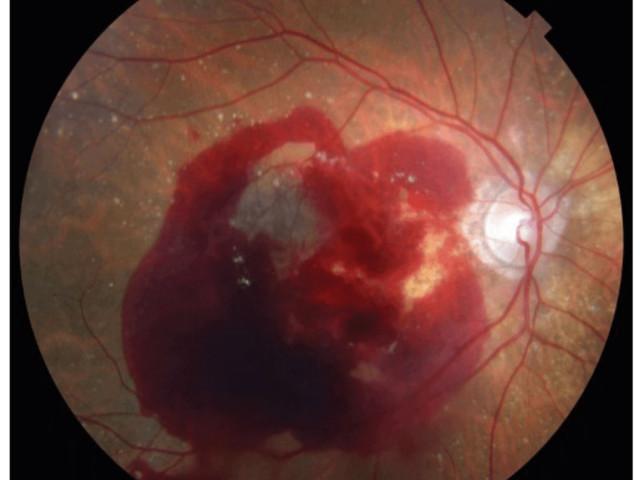 Drug wars about macular degeneration