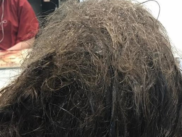 Teen's Hair Transformation Shows The Physical Impact Depression Can Have