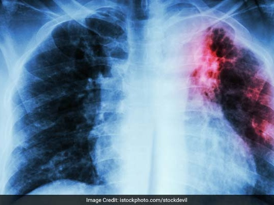 First Ever Global Ministerial Conference Pledges To End TB By 2030