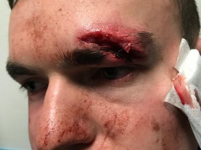Man with one arm and one leg says he was dragged outside a bar and violently assaulted by a bouncer