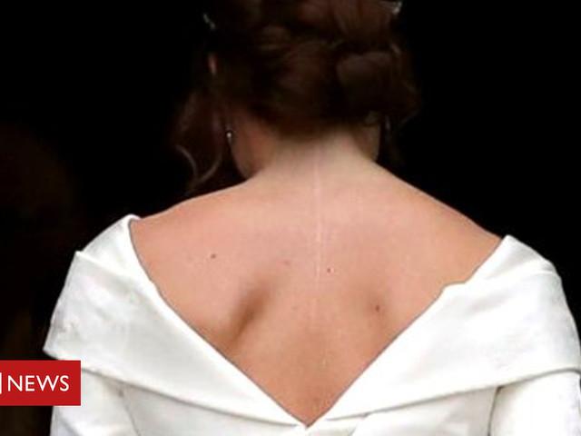 Princess Eugenie: 'I wanted my wedding dress to show my scar'