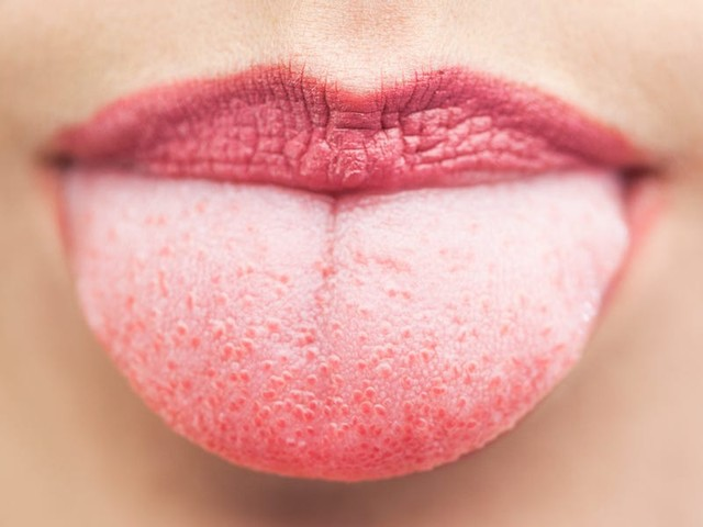 A 'supertaster' gene that makes people more sensitive to bitter flavors may also help protect against COVID-19
