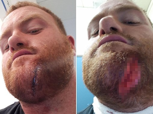 Builder gets a nine-inch angle grinder lodged in his CHIN