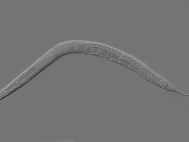 Study documents paternal transmission of epigenetic memory via sperm