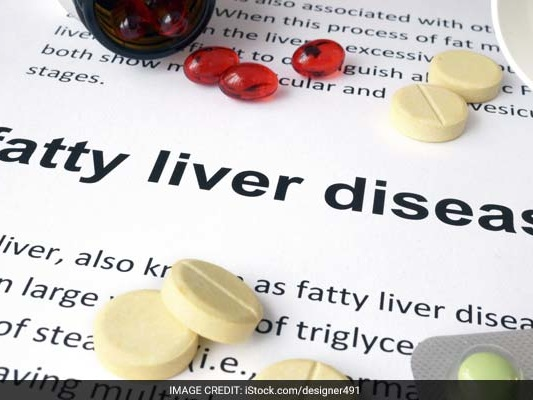 Nonalcoholic Fatty Liver Disease (NAFLD): Top 5 Causes You Must Know