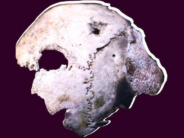 They Saved Hitler's Skull. Or Did They?