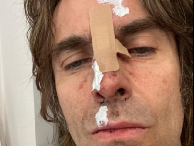 Liam Gallagher suffers injuries after 'falling out of helicopter' following Isle of Wight headline set