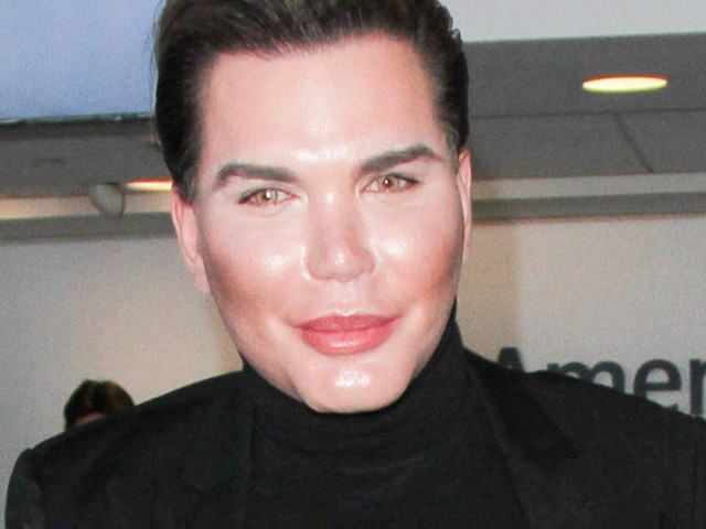 'Celebrity Big Brother' 2017 Line-Up: Plastic Surgery-Lover Rodrigo Alves Pulls Out To Have Operation