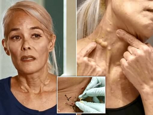 Woman who has FIFTY 25-year-old cysts has them removed in Dr Pimple Popper