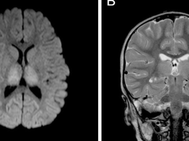 Doctors Were Able To Almost Completely Reverse Severe Brain Damage In A Toddler