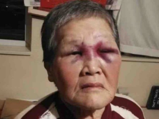 Elderly Asian woman who fought back against attacker donates $1 million raised to charity
