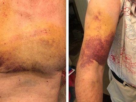 Elderly man, 75, violently beaten with his own walking stick