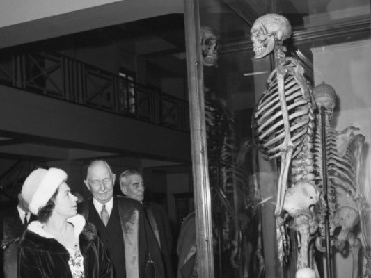 After sustained campaign, Irish giant's bones may finally be released from London museum
