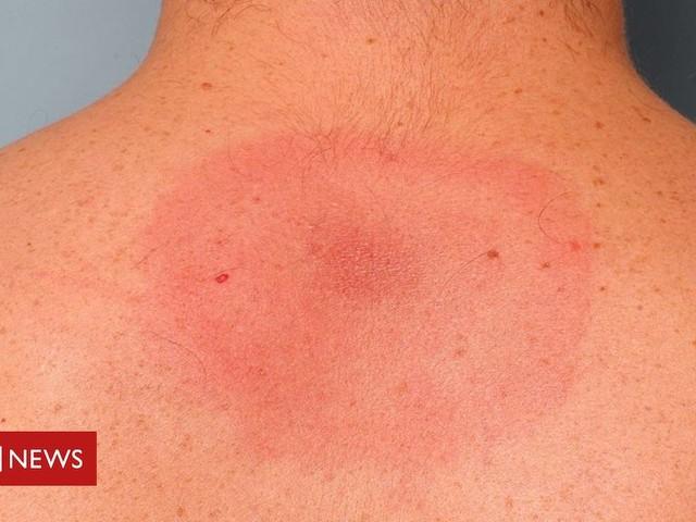 Long-term Lyme disease 'actually chronic fatigue syndrome'