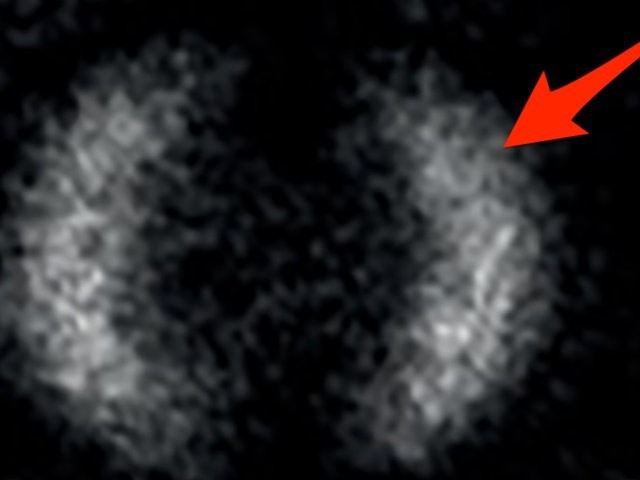 A 'spooky' effect of physics that Einstein couldn't believe has been photographed for the first time