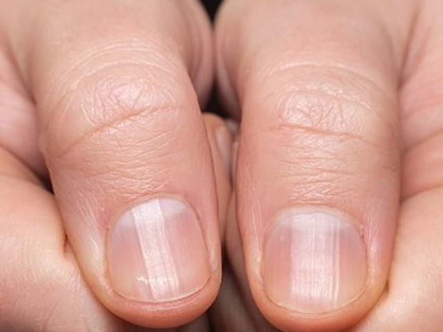 People urged to do home finger test to show signs of early lung cancer