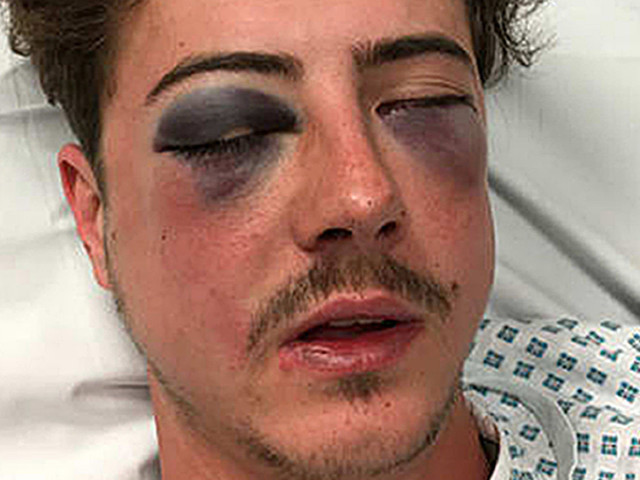 Spurs Fan Seriously Hurt In Attack After 'Being Mistaken For Chelsea Supporter'