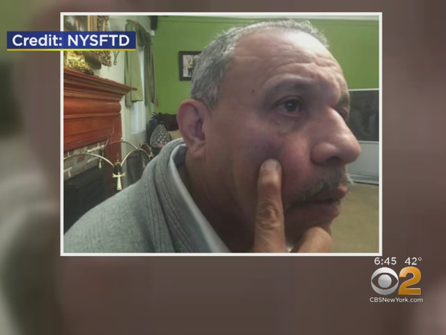 Taxi Driver Says He Was Violently Attacked After Driving Couple In Harlem
