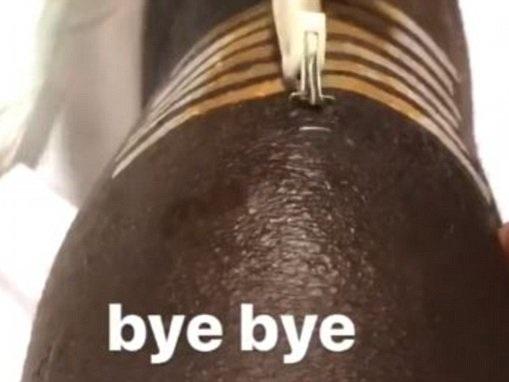 Man City star Benjamin Mendy says 'bye bye' to stitches