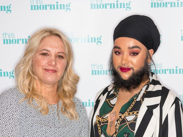 The House of Extraordinary People star says she's a confident 'bearded lady' and new show proves they're 'not freaks'
