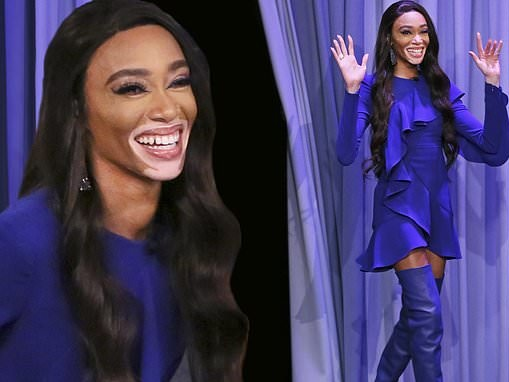 Winnie Harlow is beautiful in blue mini dress with thigh-high boots for Tonight Show interview