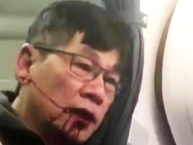 United Airlines boss apologises for 'horrific' removal of passenger