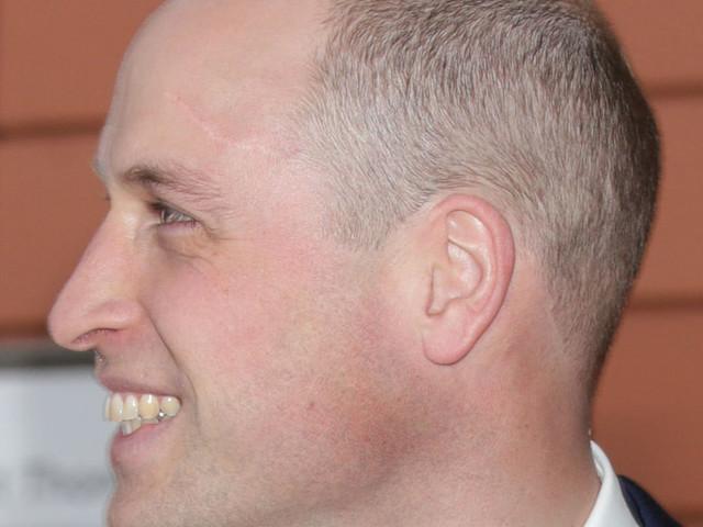 The Duke Of Cambridge Debuts Shaved Head