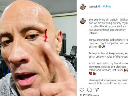 Dwayne Johnson suffers gym injury