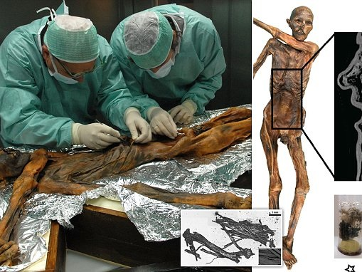 5,300-year-old iceman's mummified stomach has traces of a high-fat dinner of goat and red deer meat