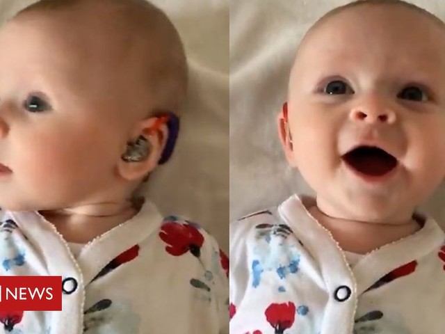 Moment baby daughter's new hearing aids are turned on