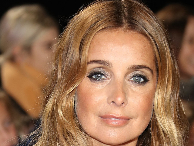 Louise Redknapp Pulls Out Of Dolly Parton Musical After A Fall Causes Facial Injuries And Broken Wrist