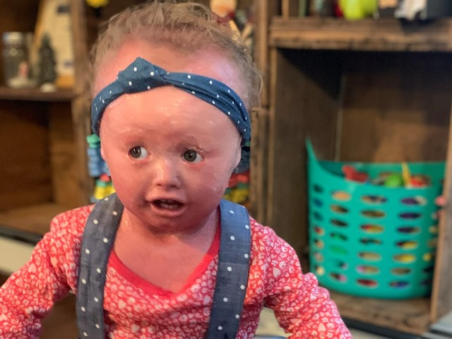 A baby girl who 'never stops smiling' is living with a rare condition that makes her skin crack