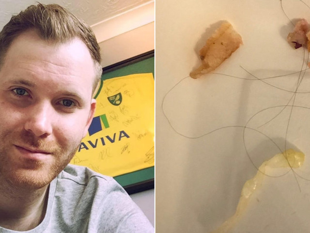 Deliveroo Tells Customer Thick Human Hairs In His Food Are 'Matter Of Personal Taste'