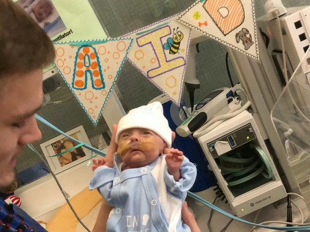 Miracle baby born with NO SKIN and 30 weeks premature defies all odds to survive