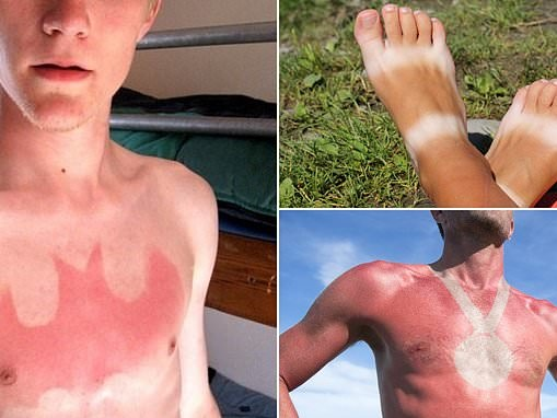 Sunburn tattoo trend is going viral online for the summer