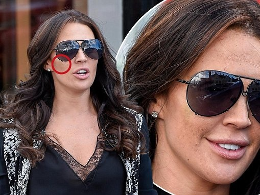 Danielle Lloyd displays bruised face after fillers
