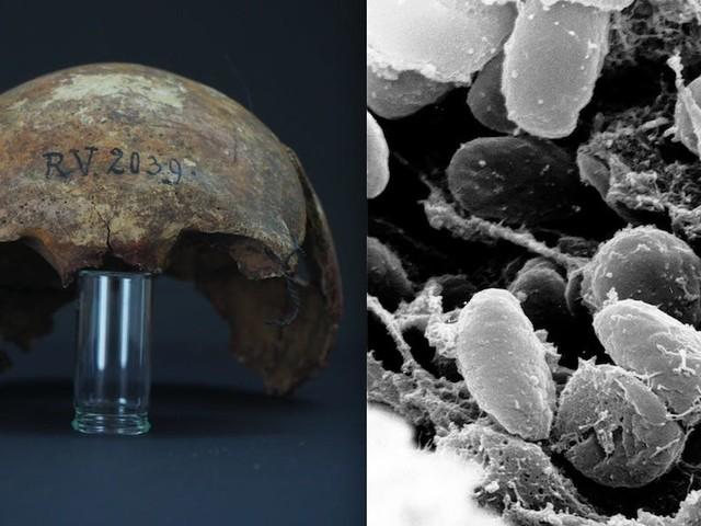 5,000-year-old bacteria is the oldest strain of plague ever seen. Scientists found it in the ancient bones of a Stone Age man.