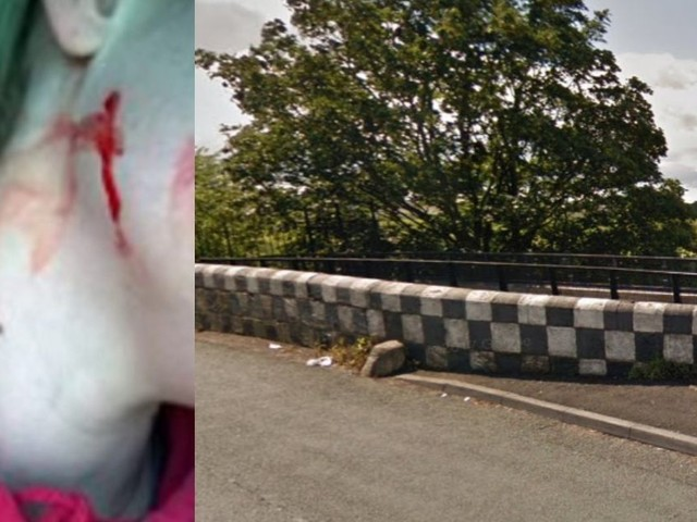 Woman attacked by terrifying pack of 'cute' dogs issues warning to others
