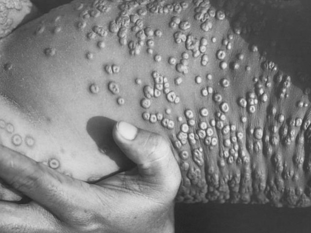 Smallpox Could Again Be a Serious Threat