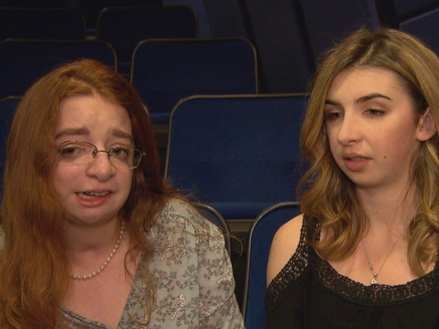 'You should go kill yourself': People living with facial differences remember bullying as they watch Wonder