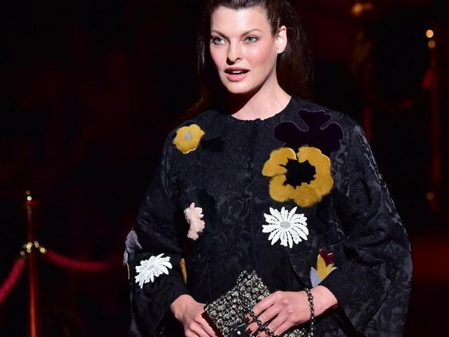 Supermodel Linda Evangelista says fat-reduction left her deformed
