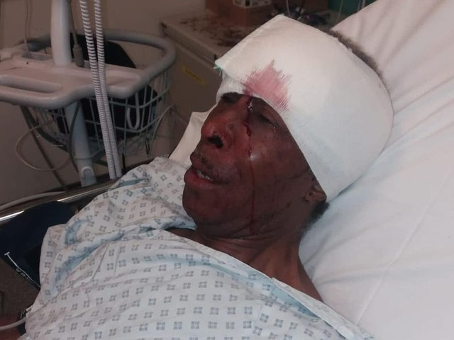 Police watchdog probes case of Black man, 70, left in hospital after being stopped for faulty brake light