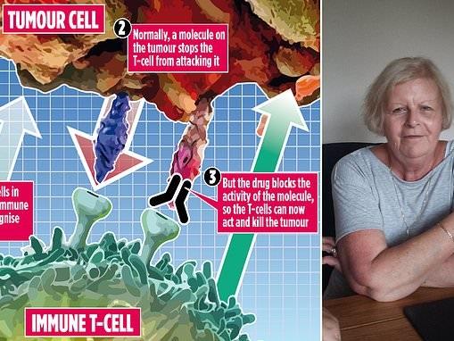 Lifeline for bowel cancer patients as experts hail game-changing breakthrough drug