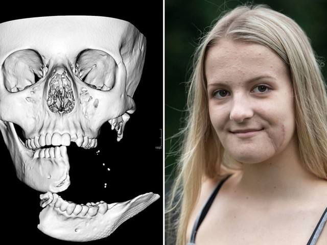 Girl's jaw hung by 1cm of skin after horror accident