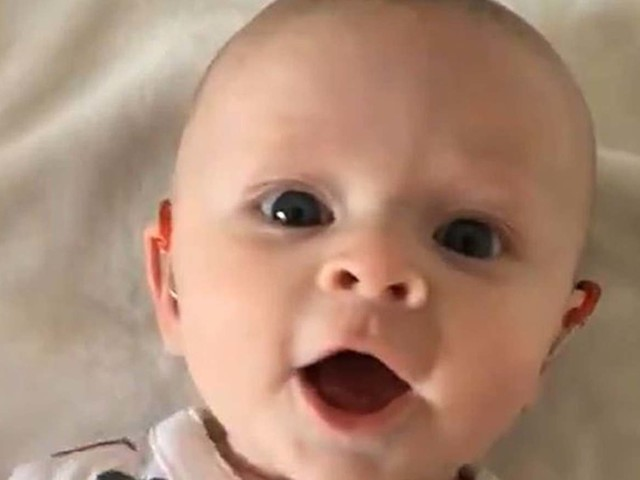 Heartwarming moment baby gurgles with delight after new hearing aids are turned on