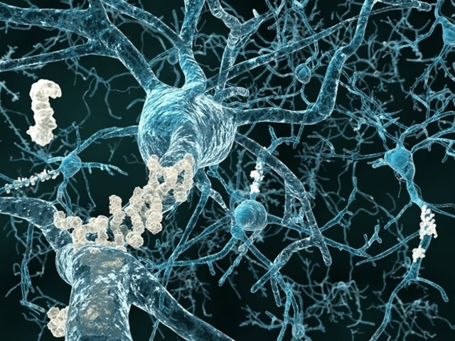 Blood pressure drug appears to be helpful for people with Alzheimer's disease