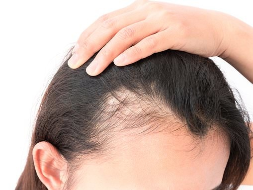 DR ELLIE CANNON: My hair is thinning... could it be caused by heartburn medicine?